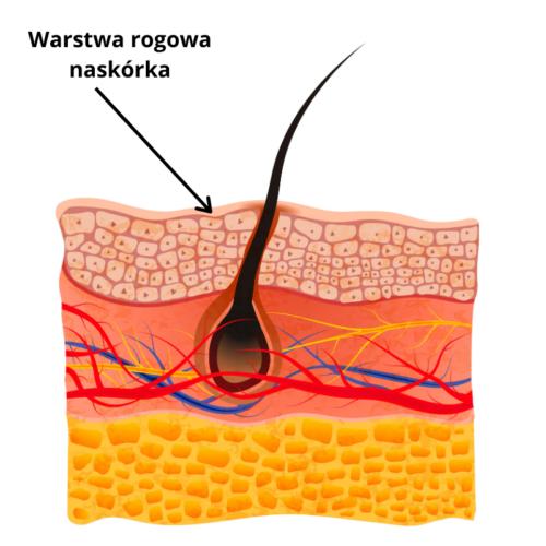 Skóra sucha traci wodę przez uszkodzoną warstwę rogową naskórka