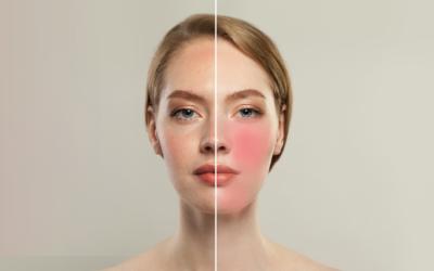 Trądzik różowaty – objawy, leczenie i pielęgnacja