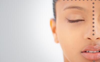 Alfabet pielęgnacji – S jak seboregulacja